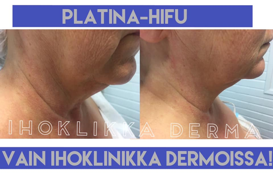 Platina Hifu